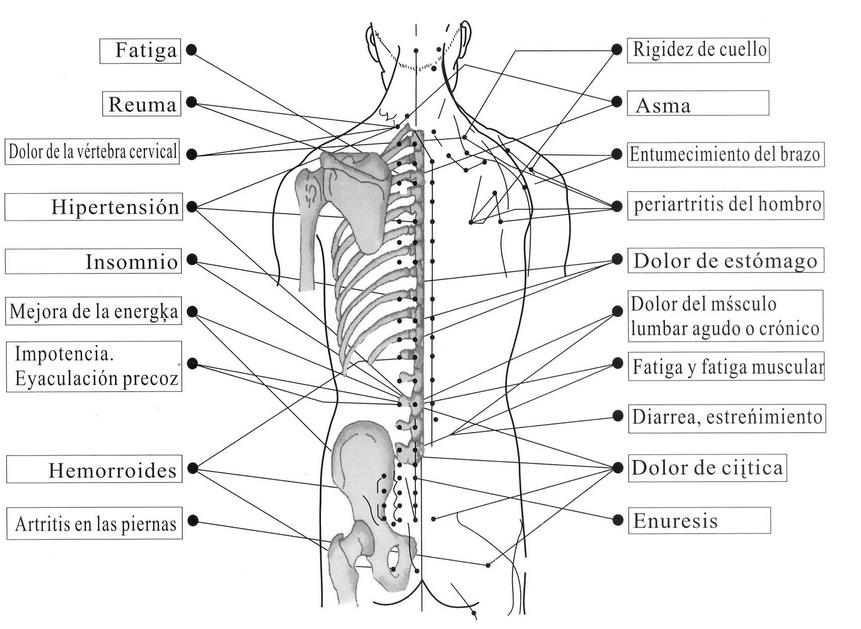 digitopresión para el dolor